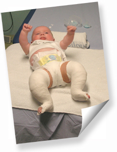 Photo of Baby Harley with both legs in plasters.  Click for photogallery and full description of each photo