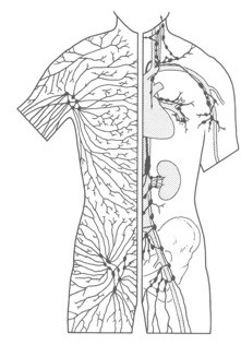 Lymphoedema node diagram